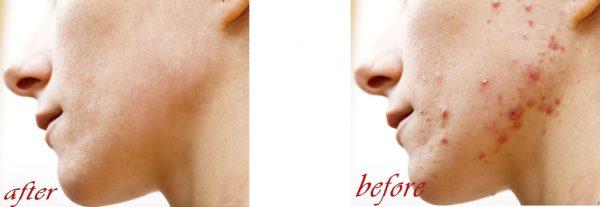۵ روش سریع برای ادیت جوش صورت در فتوشاپ